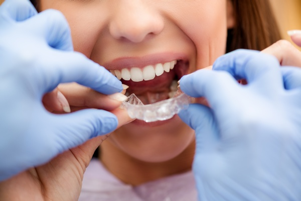 Invisalign: Which Foods And Drinks To Avoid