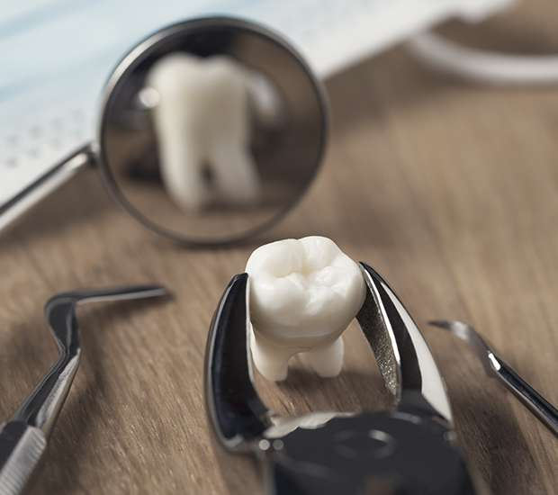 Fontana When Is a Tooth Extraction Necessary